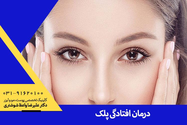 درمان افتادگی پلک در اصفهان