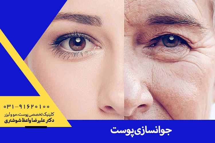 جوانسازی پوست در اصفهان